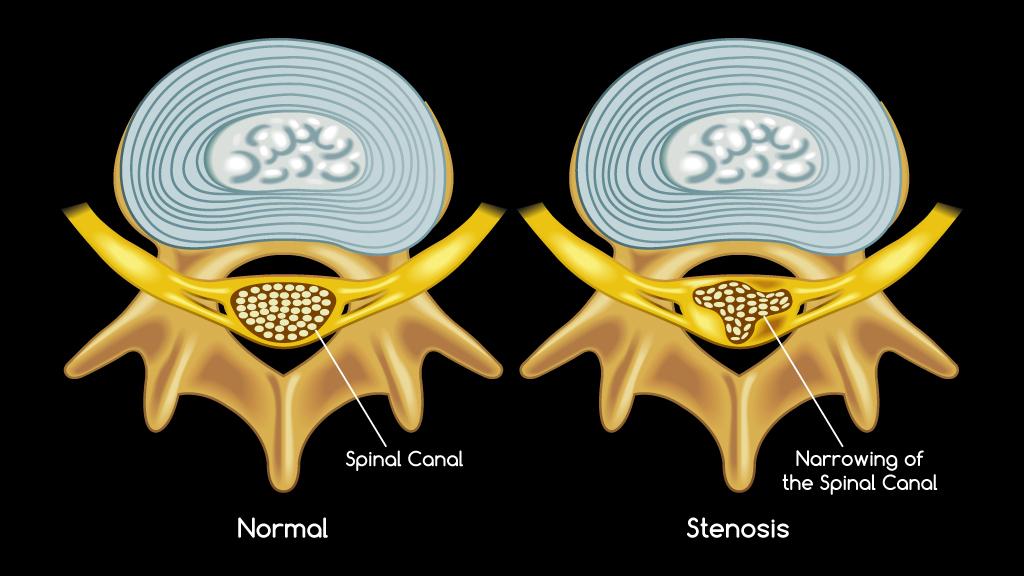 Spinal Stenosis | Spinal Decompression | San Ramon | Back Pain